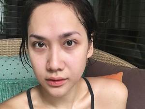 10 Foto BCL Tanpa Makeup, Tetap Cantik Walau Bibir Kering dan Mata Berkantung
