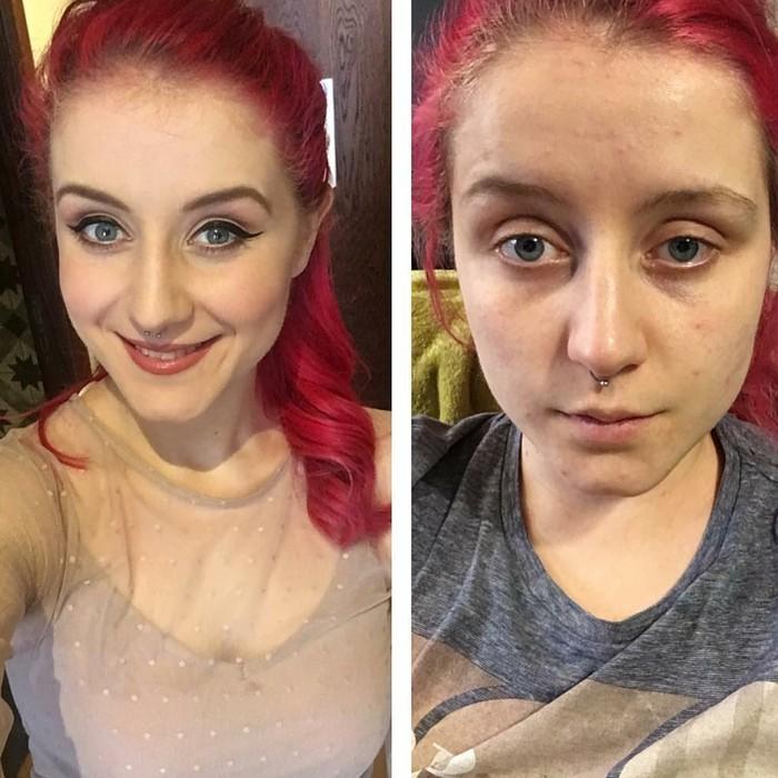 Seorang wanita dari Hull, Inggris, kerap membagikan fotonya ketika diserang depresi. Ia ingin menunjukkan bahwa gangguan mental tidak punya wajah tertentu. (Foto: Instagram/@selfloveclubb)