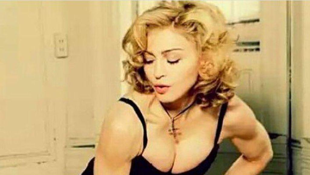 Madonna Pose Topless Usai Operasi Lutut