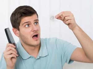 8 Tips Alami Mencegah Kebotakan Rambut