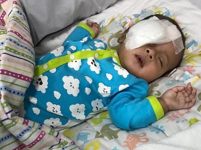 Rayyan Gibran Ridharaharja setelah operasi katarak. (Foto: instagram)