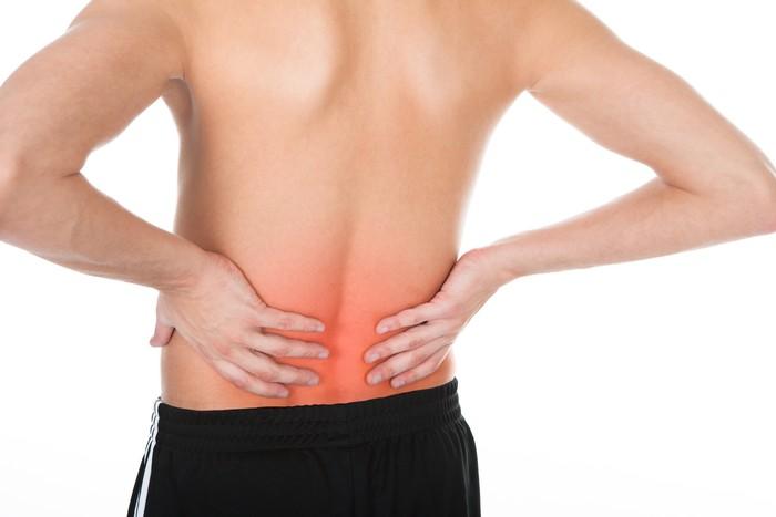 Muncul nyeri lokal dari saraf yang terjepit di tulang belakang, seperti sekitar punuk atau punggung. Saraf terjepit adalah hasil dari keluarnya inti diskus spinal (herniasi), yaitu jaringan lunak yang dilindungi anulus di ruas tulang belakang, yang kemudian menekan serabut saraf. Foto: Ilustrasi/thinkstock