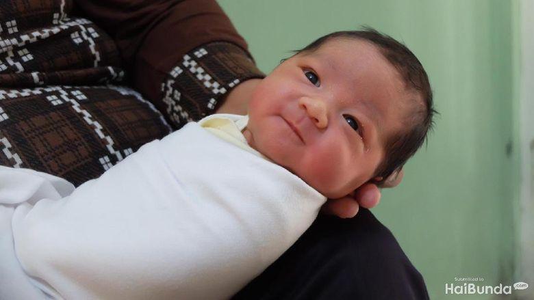 Ada Benjolan Benjolan Kecil Di Belakang Kepala Bayi Apa Itu Ya
