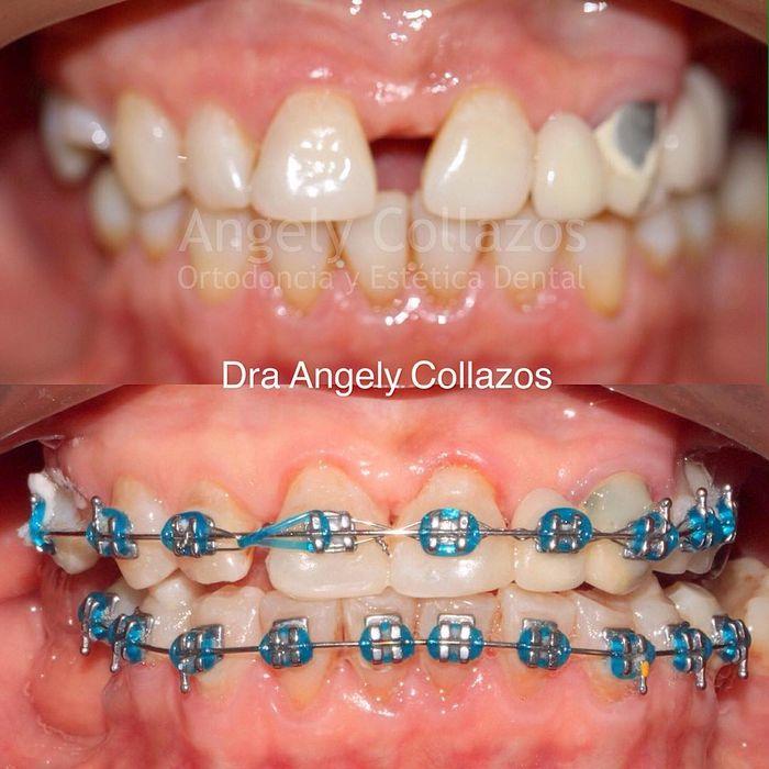Keren Begini Potret Perubahan Gigi Setelah Gunakan Behel