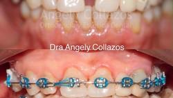 Pada dasarnya gigi memiliki posisinya masing-masing. Namun, tak jarang gigi tumbuh berantakan sehingga perawatan khusus seperti menggunakan behel diperlukan.