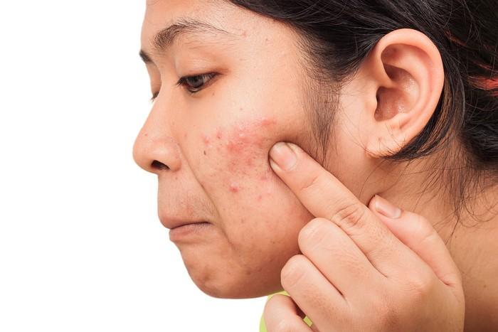 Susu sama sekali tidak ada timbal balik yang baik untuk kulit. Ahli dermatologi justru menganjurkan untuk mengurangi konsumsi produk susu bila Anda memiliki masalah kulit seperti jerawat, eksim atau gangguan kulit lainnya. Foto: Thinkstock