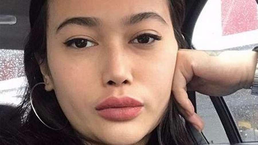 Dibilang Bentuk Bibirnya Berubah, Ini Transformasi Ratu Felisha