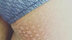 Ketika tertidur lelap kita bisa tak sadar ada pola dari benda-benda yang ditiduri menempel di kulit. Nah orang-orang ini punya pola tidur yang unik.