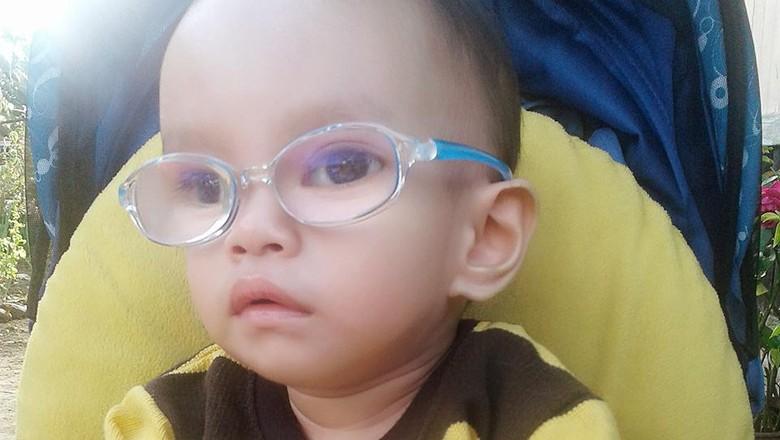 Abyn kena katarak sejak bayi/ Foto: dok Pribadi