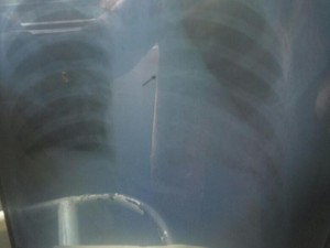Pengangkatan Jarum Pentul di Tubuh Anisa Gunakan Alat Bronkoskopi