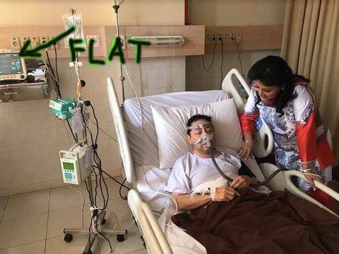 Heboh EKG Setya Novanto Grafiknya '<I>Flat</I>', Artinya Apa Sih?