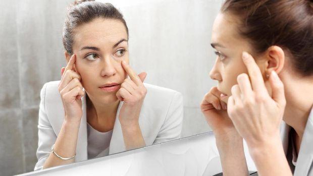 Lingkar hitam pada mata umumnya dipicu stres.