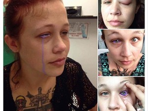 Seram! Gara-gara Tato Mata, Gadis Ini Hampir Kehilangan Penglihatannya