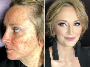 Jerawatan Satu Wajah, Muka Wanita Ini Seketika Jadi Mulus Berkat Makeup