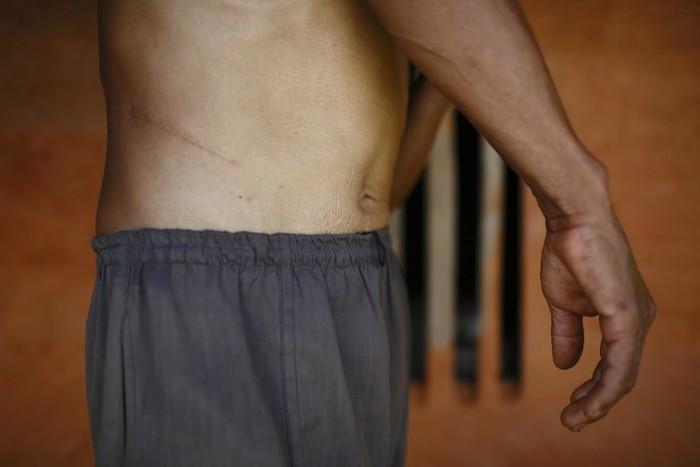 Padahal dengan satu ginjal tetap ada implikasi kesehatan yang bisa dihadapi. Sebagai contohnya tekanan darah tinggi dan pengurangan fungsi pada ginjal yang tersisa (Foto: Reuters)