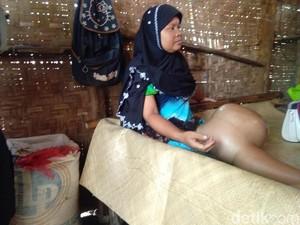 Derita Suhati, Penderita Kanker Tulang di Rumah Gubuk Aceh Utara