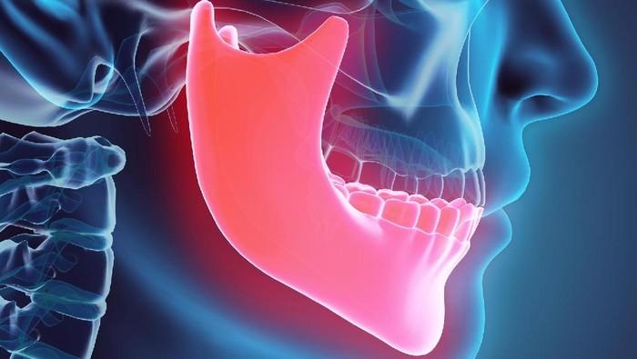 Gigi ekstra bisa tumbuh di bagian bawah atau atas rongga mulut. (Foto ilustrasi: Thinkstock)