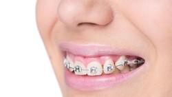 Gigi geraham bungsu yang tumbuh miring atau impaksi dapat menimbulkan berbagai dampak negatif. Bila sudah demikian maka sebaiknya segera dicabut.
