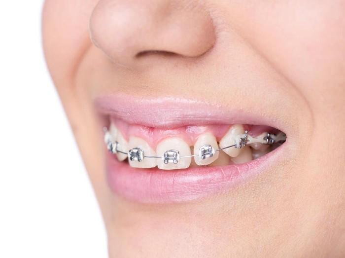Banyak pasien mengeluhkan gigi yang dulunya rapi, saat ini menjadi berdesakan saling tumpang tindih dan cenderung tonggos. Secara empiris keberadaan gigi bungsu terbukti secara signifikan mendorong gigi ke arah depan lebih cepat. (Foto: Thinkstock)