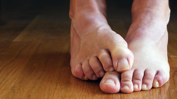 Menghilangkan bau kaki di musim hujan
