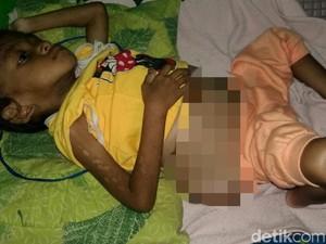 Bocah Sukabumi yang Diduga Salah Obat Ternyata Tumor dan Gizi Buruk
