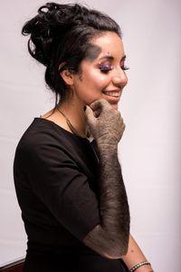 Punya 200 Tanda Lahir, Wanita Ini Dijuluki Gorilla Hingga Dalmatian