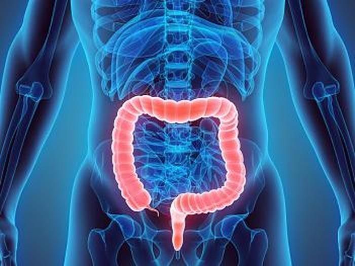 Ini yang perlu kamu ketahui tentang kanker usus besar. Foto: ilustrasi/thinkstock