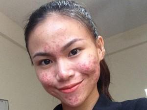 Bangga Pamer Foto Penuh Jerawat, Wanita Ini Ubah Persepsi tentang Cantik
