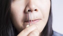 Kadang tanpa disadari tiba-tiba saja darah bisa mengucur keluar dari dalam hidung. Orang-orang menyebutnya mimisan dan hal ini bisa disebabkan berbagai hal.