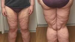 Ketika seseorang berhasil menurunkan berat badan secara drastis dalam waktu singkat, biasanya akan tersisa kulit ekstra dari besar tubuhnya dulu.
