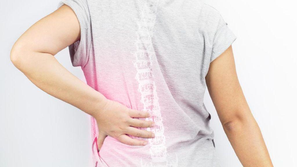 Risiko Patah Tulang Bagi Wanita yang Mengalami Menopause Dini