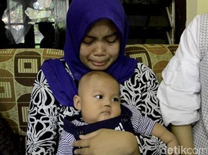 Sekat Hidung Bayi di Pekalongan Hilang, RSUD: Itu Resiko Medis