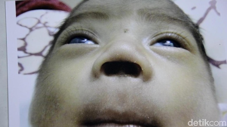 Bupati Pekalongan Janji Awasi Kasus Bayi Kehilangan Sekat Hidung