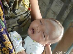 Keluarga Bayi Kenzo Tak Salahkan Dukun Pijat Bayi