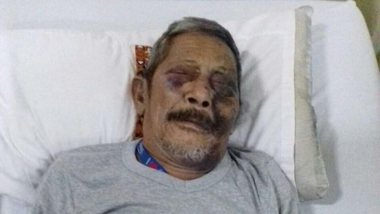 Viral Foto Kakek Hasan Korban Tabrakan, Begini Kisah Sebenarnya
