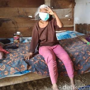 Wajah Nenek Sebatang Kara di Boyolali Ini Digerogoti Kanker Ganas