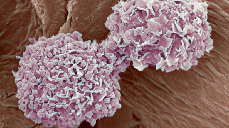 Kanker Payudara Serang Pria di Irlandia Utara