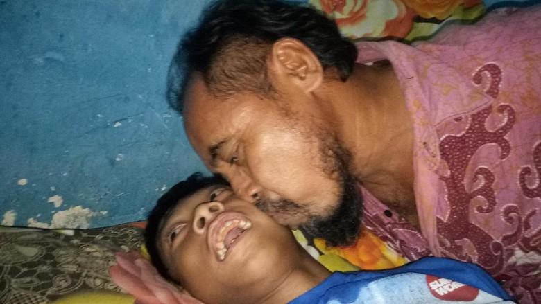 Bocah yang Dibawa dengan Gerobak Bapaknya Akhirnya Dirawat di RS