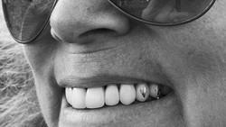 Kalau tato biasanya dilukis di atas kulit, kini muncul tren baru di mana orang-orang menato gigi. Jadi ketika tersenyum, orang lain bisa melihatnya.