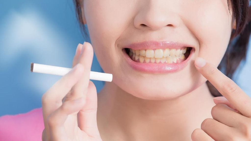 8 Penyebab Gigi Menjadi Kuning, Mulai dari Merokok Hingga Minum Kopi