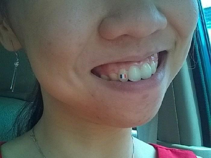 Tren menato gigi muncul beberapa tahun terakhir dengan sebagian orang menyebutnya sebagai tatooth. (Foto: Instagram/gigisehatdental)