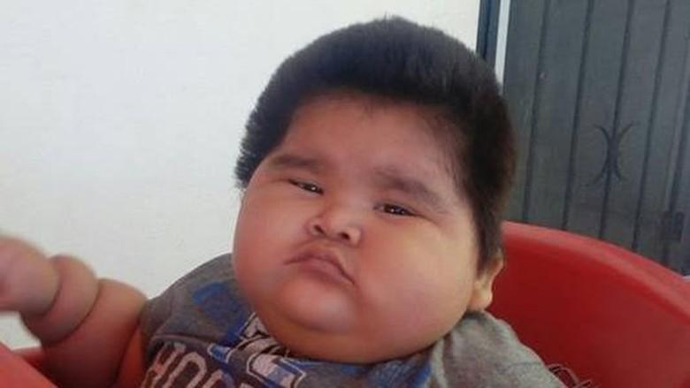 Kurang Gizi, Anak Usia 2 Tahun Hanya Berbobot 8 Kg