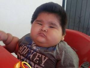 Umur 10 Bulan, Bayi Ini Beratnya Sama dengan Anak 9 Tahun