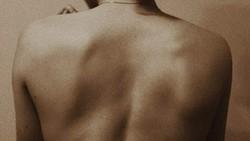 Skoliosis adalah kondisi kelainan tulang di mana tulang belakang melengkung ke arah samping. Anak-anak dan remaja rentan mengalami hal ini.