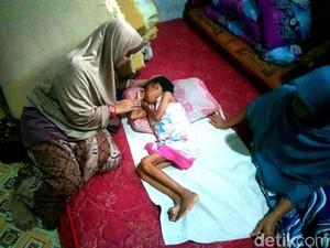 6 Tahun Menderita Gizi Buruk, Bobot Bocah 14 Tahun Ini Tinggal 13 Kg