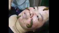 Rahasia Awet Muda Selebriti Dunia: Facial Lintah