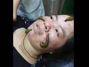 Ngeri, Wanita Ini Facial Wajah Pakai Lintah untuk Sedot Jerawat