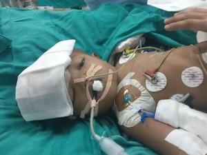 Bayi Kembar Siam yang Dipisahkan di India Akhirnya Membuka Mata