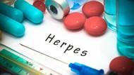 Kena Herpes Setelah Ciuman, Pria Gugat Teman Kencan Rp 2,4 M