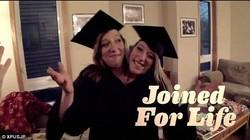 Abigail dan Brittany Hensel adalah pasangan kembar dempet asal Minnesota. Keduanya menjadi bukti bahwa beberapa kembar dempet dapat bertahan hingga dewasa.